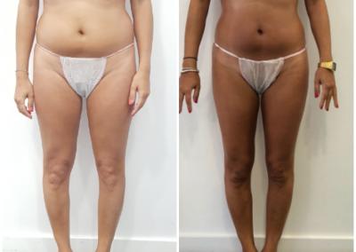 Tratamiento lipolitico abdomen y tratamiento reafirmante en glúteos. 20 sesiones 2 veces por semana.