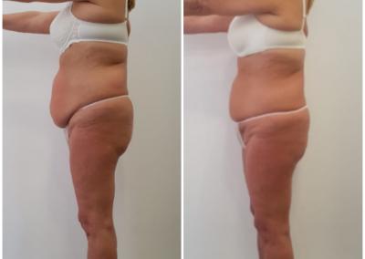 Tratamiento lipolitico zona abdomen. 15 sesiones 2 veces por semana.